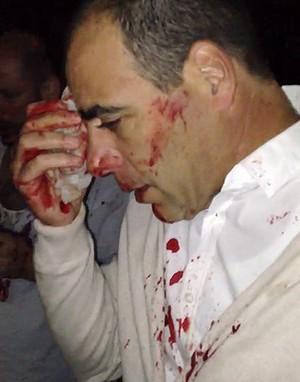 Jewish victim of Friday's antisemitic attack in Sydney